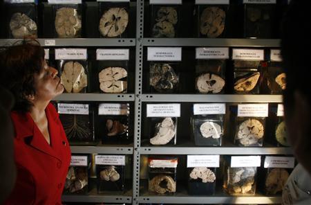 Peru brain museum puts most complex organ on display