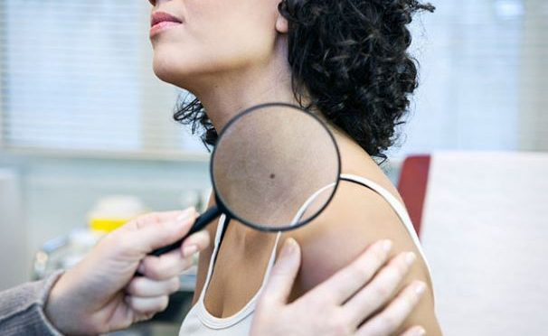 Algorithms to identify skin cancers through photographs
