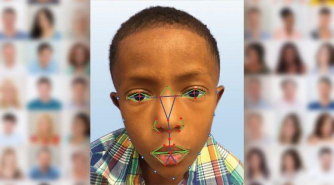 Facial recognition tech helps diagnose rare genetic disease