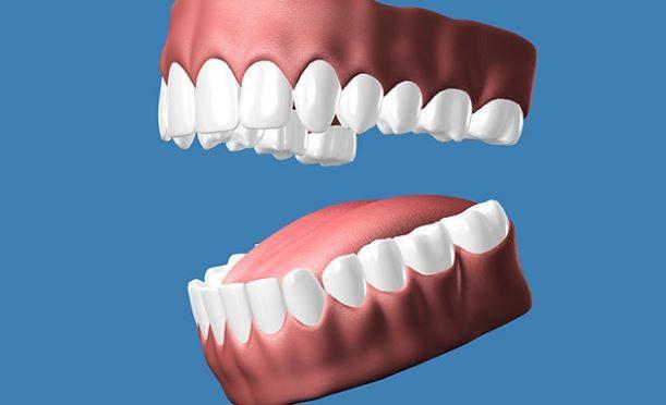 3D-printed teeth becomes the rage in UAE