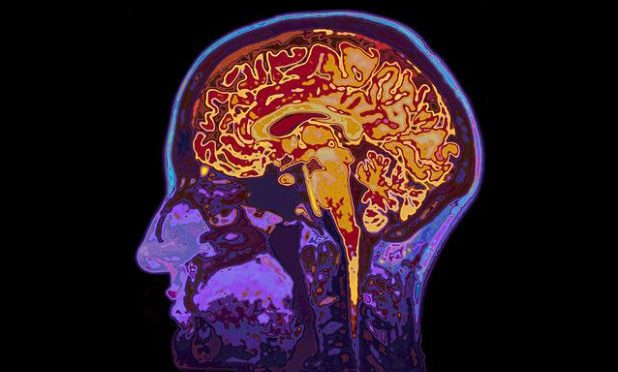Brain scan as 'lie detector' for pain inappropriate, say scientists