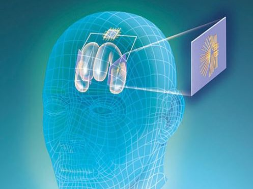 This prosthetic system could restore memory loss